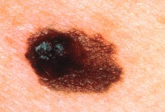 Weißer Hautkrebs Und Schwarzes Melanom Wissensschaude